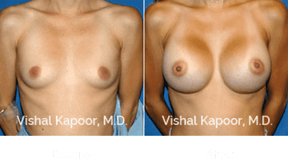 breast augmentation patient's before and after pictures