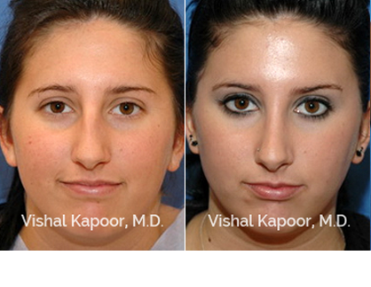 Septoplasty Beverly Hills