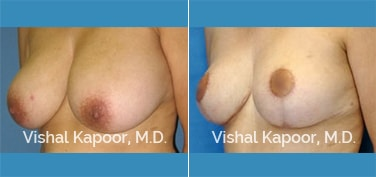 Female patient experienced back pain and wished to get a Breast Reduction Surgery in Beverly Hills