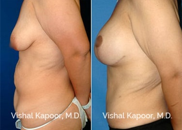 Breast Lift performed by Dr Kapoor in Beverly Hills Before and After