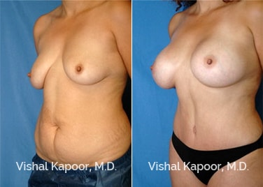 Patient 5 came in for a Mommy Makeover that includes a Tummy Tuck and Breast Lift Augmentation Kapoor MD Plastic Surgery