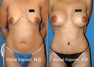 Mommy Makeover can include a tummy tuck and breast augmentation