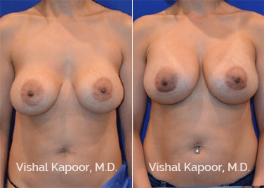 Patient 04 Front View Breast Augmentation Revision Beverly Hills Cosmetic Plastic Surgery Doc