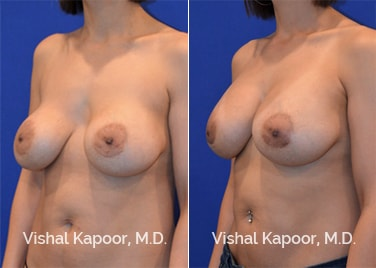 Patient 04 Side View Breast Augmentation Revision Beverly Hills Cosmetic Plastic Surgery Doc