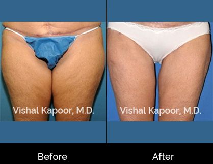 Thigh Liposuction Beverly Hills